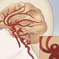 Как очистить сосуды головного мозга — мощный народный рецепт