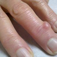Легко убираем наросты на пальцах рук и ног
