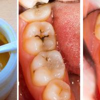 Эта маска для зубов оставит стоматологов без работы!